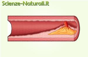 placche coronariche