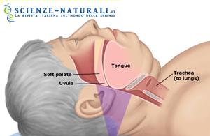 apnea sonno