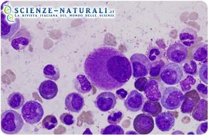 leucemia-mieloide