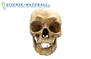 Un nuovo metodo per stabilire il colore degli occhi e dei capelli da campioni forensi attuali può essere utilizzato anche per identificare caratteristiche fisiche da antichi resti umani  (da Sciencedaily)