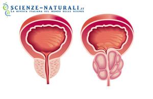 Raffigurazione di prostata in condizione fisiologiche (sinistra) ed affetta da ipertrofia prostatica (destra).