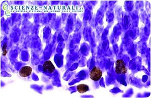 """Un gruppo di ricercatori dell'Università di Princeton ha evidenziato come l'attività fisica predisponga verso una """"riorganizzazione"""" il cervello affinché le risposte date da stress ed ansia siano ridotte nelle funzioni cerebrali. L'attività fisica ha comportato l'aumento di nuovi neuroni nell'ippocampo – regione del cervello che regola l'ansia – in alcuni topi che hanno corso per 42 giorni. Le cellule"""" marroni"""" sono i nuovi neuroni, le blu i neuroni maturi. Lo studio ha messo in risalto come la presenza delle cellule """"nuove""""(marroni) risulti più numerosa nei topi """"attivi"""" rispetto a quelli sedentari. (Sciencedaily / laboratorio Gould)"""