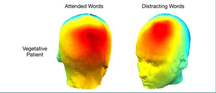 In questa scansione si evidenzia l'attività di un paziente in stato vegetativo quando richiamati da parole designate e da parole irrilevanti dalla lettura di romanzi.