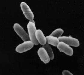 Alobatteri resistenti ad alte concentrazioni di sale.