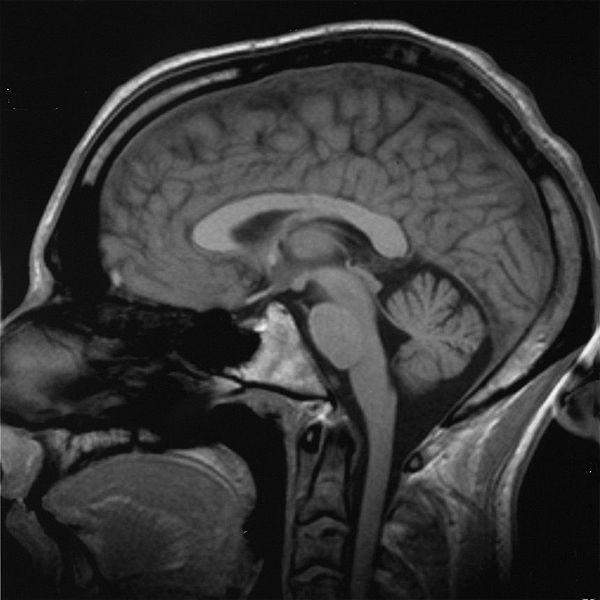 Esito di risonanza magnetica al cervello. La neocorteccia, sede delle funzioni cognitive, è la parte più esterna. (Fonte: Wikicommons)