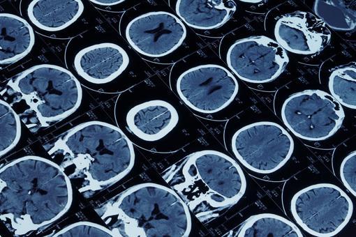 La struttura del cervello rispecchia l'evoluzione: tronco encefalico per le funzioni vegetative, nuclei della base per la motricità, sistema limbico per le emozioni, e corteccia. (Fonte Pharmastar)