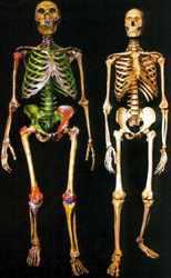 Raffronto scheletrico